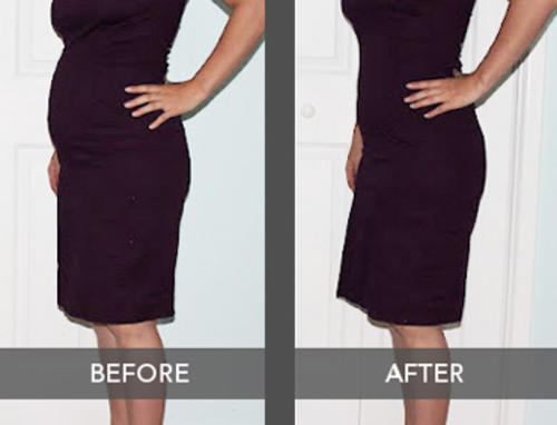 Image result for shapewear before and after