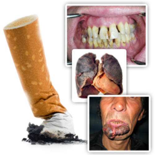 essays on harmful effects of smoking Cause and effects of smoking word access to over 100,000 complete essays and our society must be aware of the harmful affects caused by smoking.